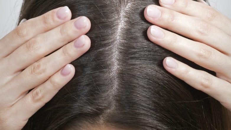 cuidado del cabello para evitar la caspa