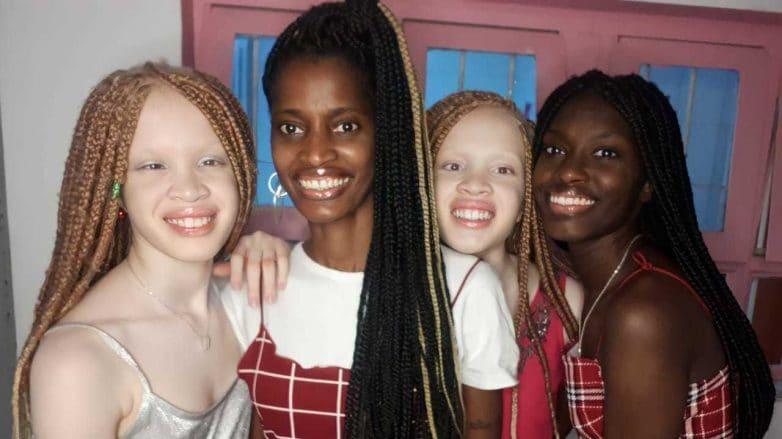 Mãe e filhas sorriem, abraçadas. Elas são negras e usam tranças em seus cabelos e duas das filhas são albinas