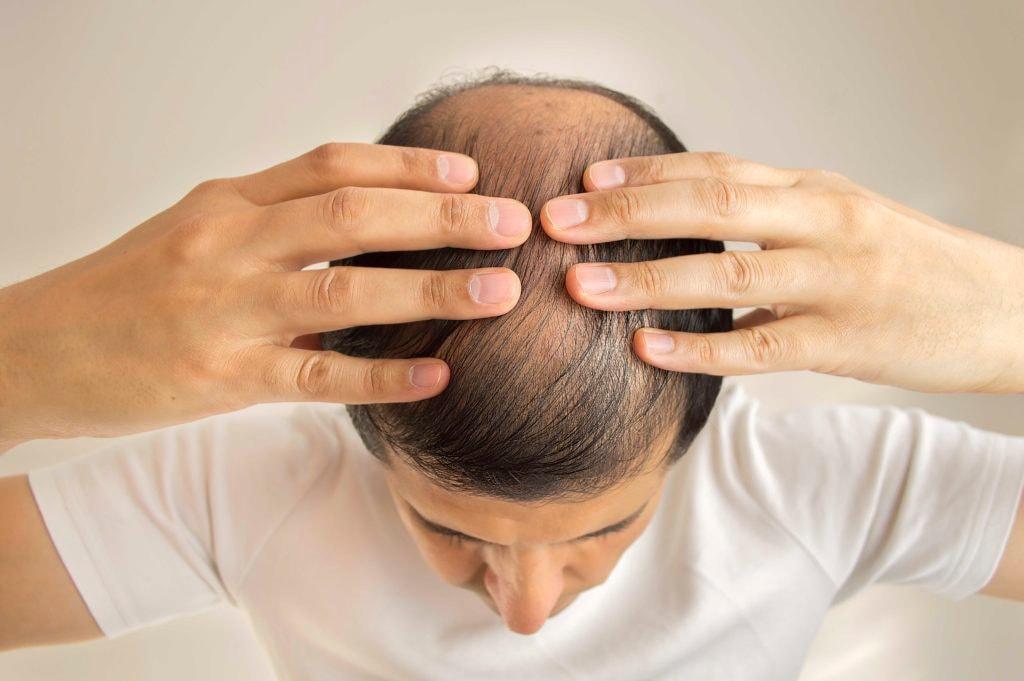 causes of hair loss in men balding man