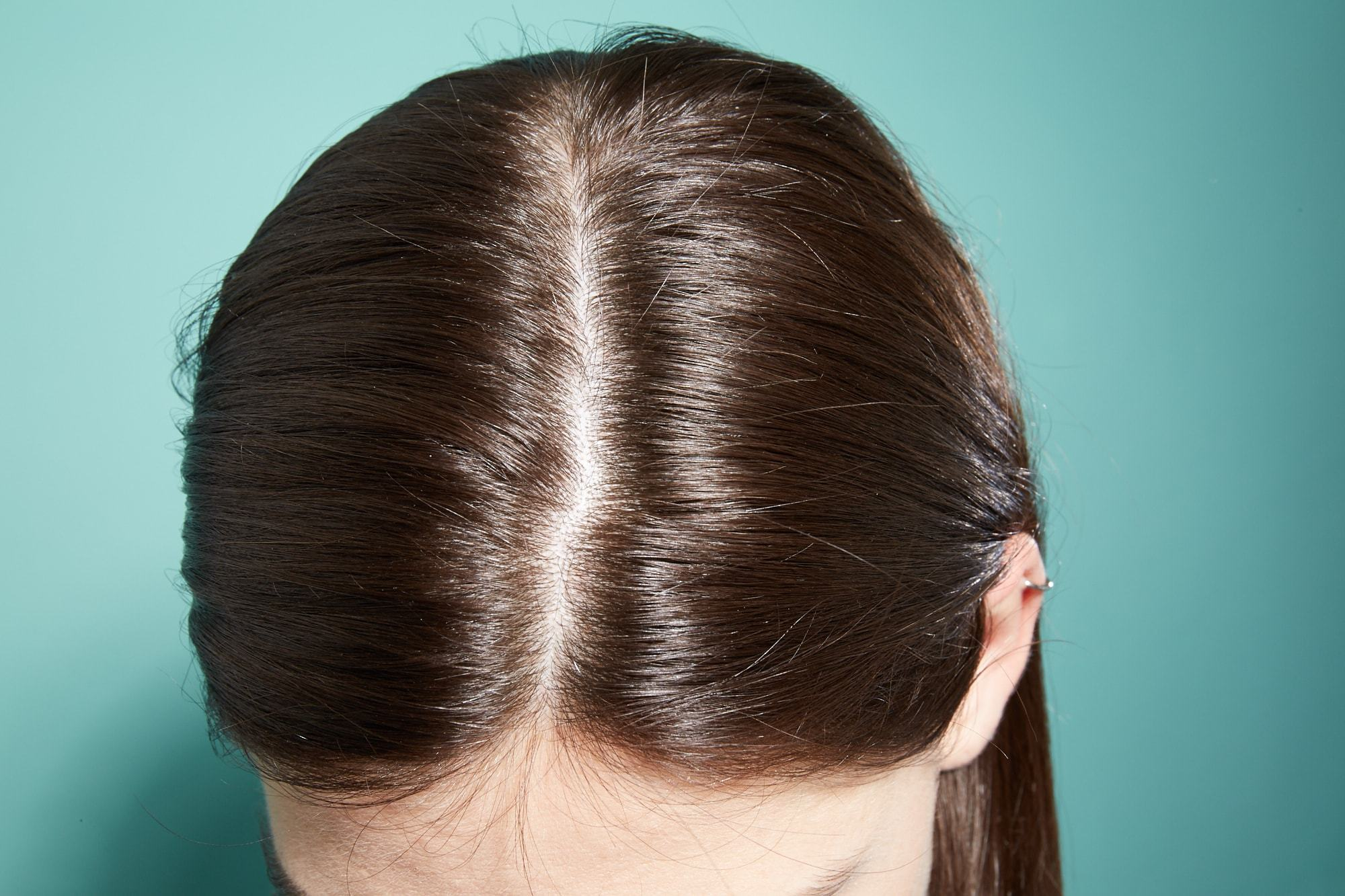 Itchy scalp causes: Close-up image of a brunette woman's scalp