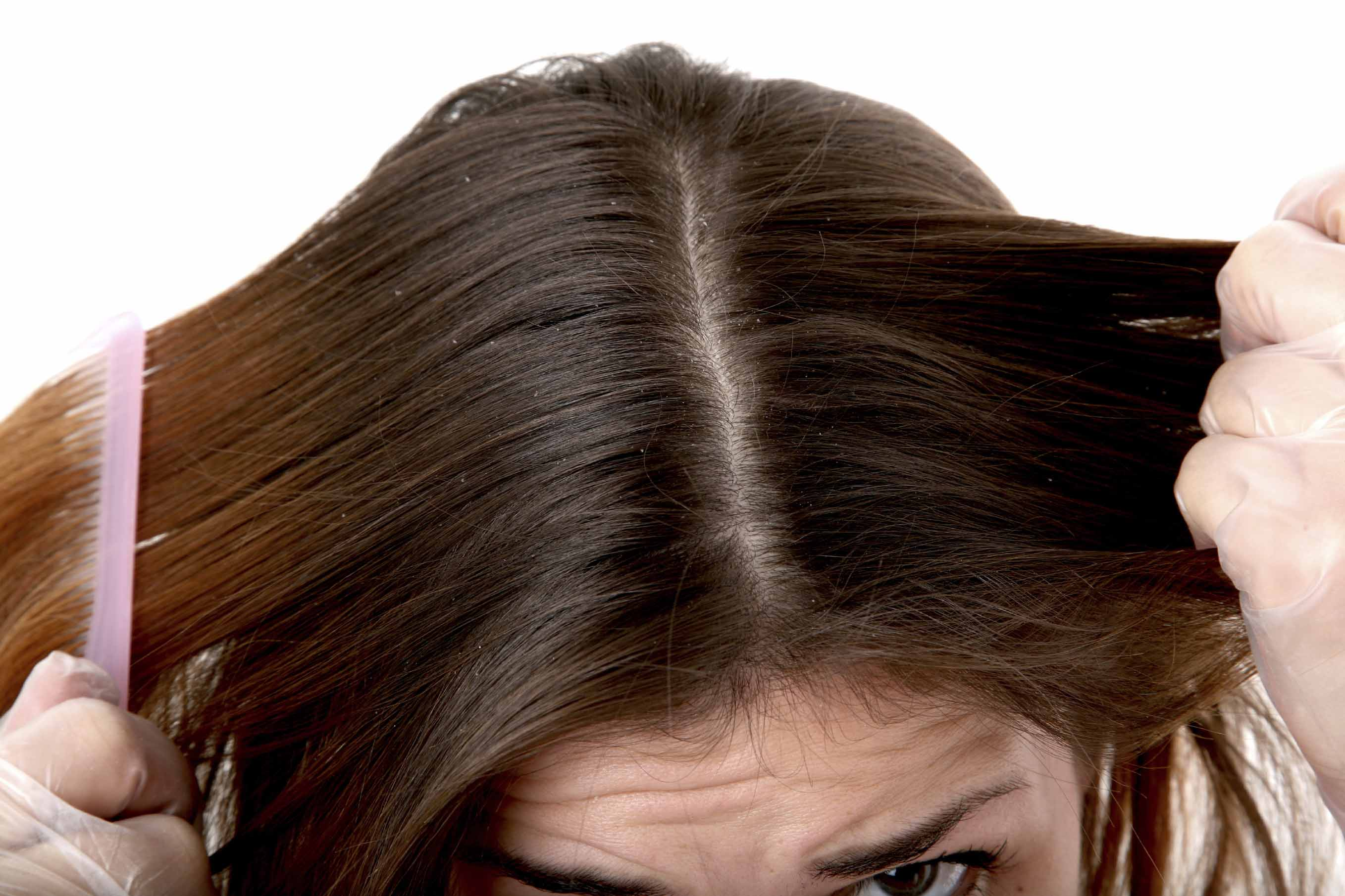 women combing her brown hair with dandruff or dry scalp