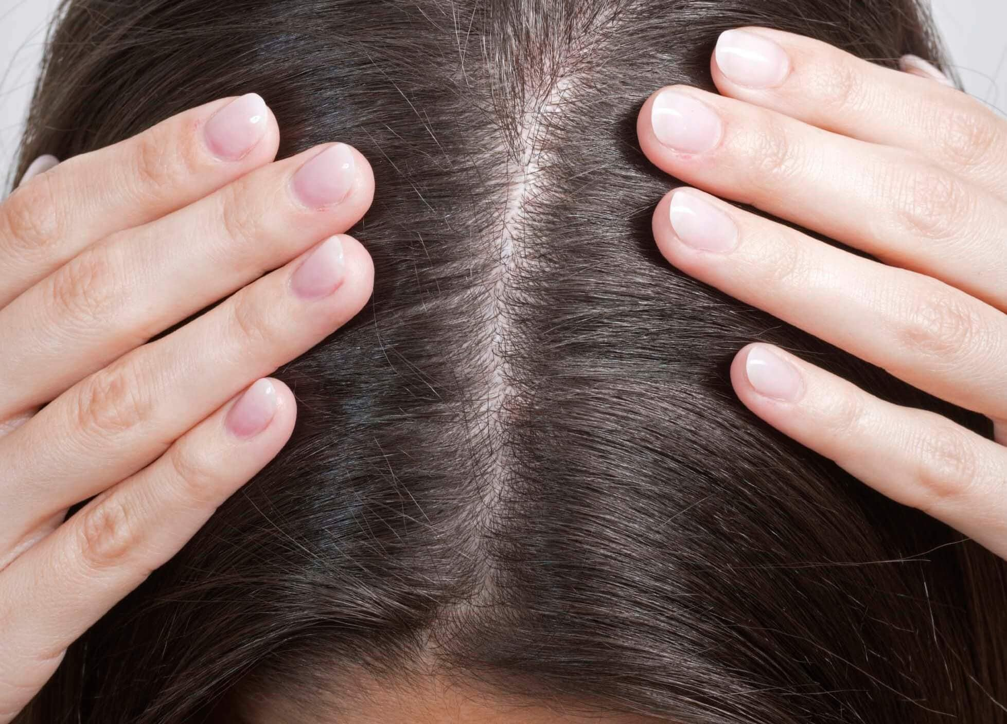 woman holding her oil-free scalp