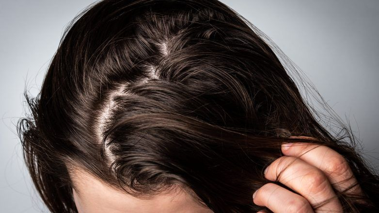 Woman with greasy, oily scalp touching her hair