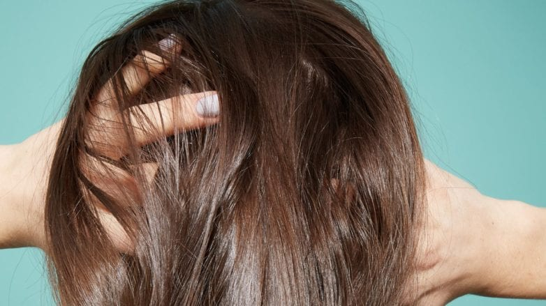 Thinning hair: Close up of scalp brunette woman thinning hair