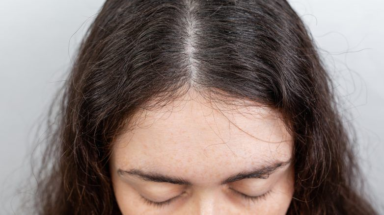 Close up of woman with coarse hair