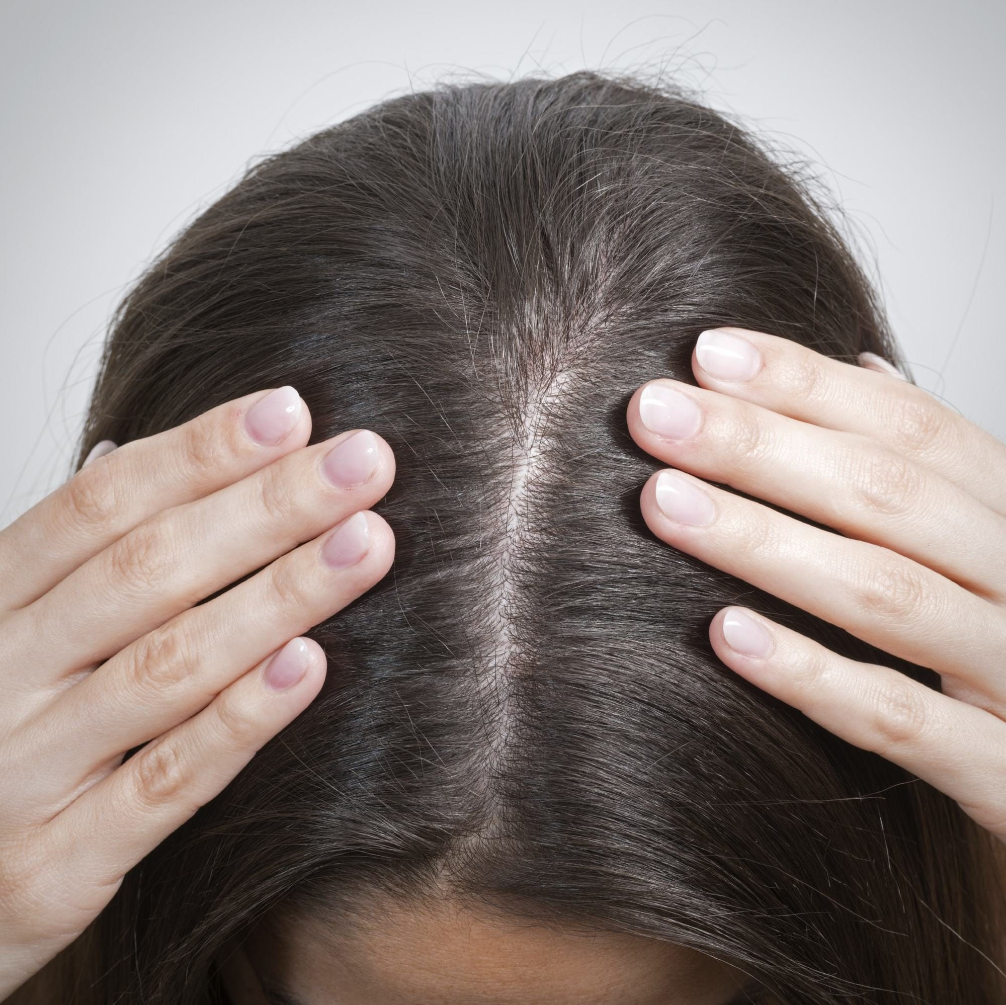 What is dandruff? Close up of brunette girl showing hair parting
