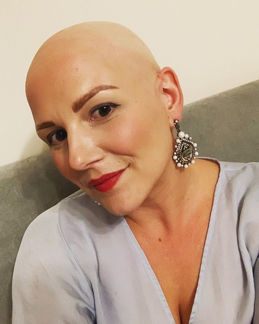 Alopecia sufferer Jo Tucker with bald head