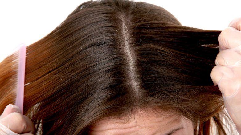 shampoo para caspa cuero cabelludo