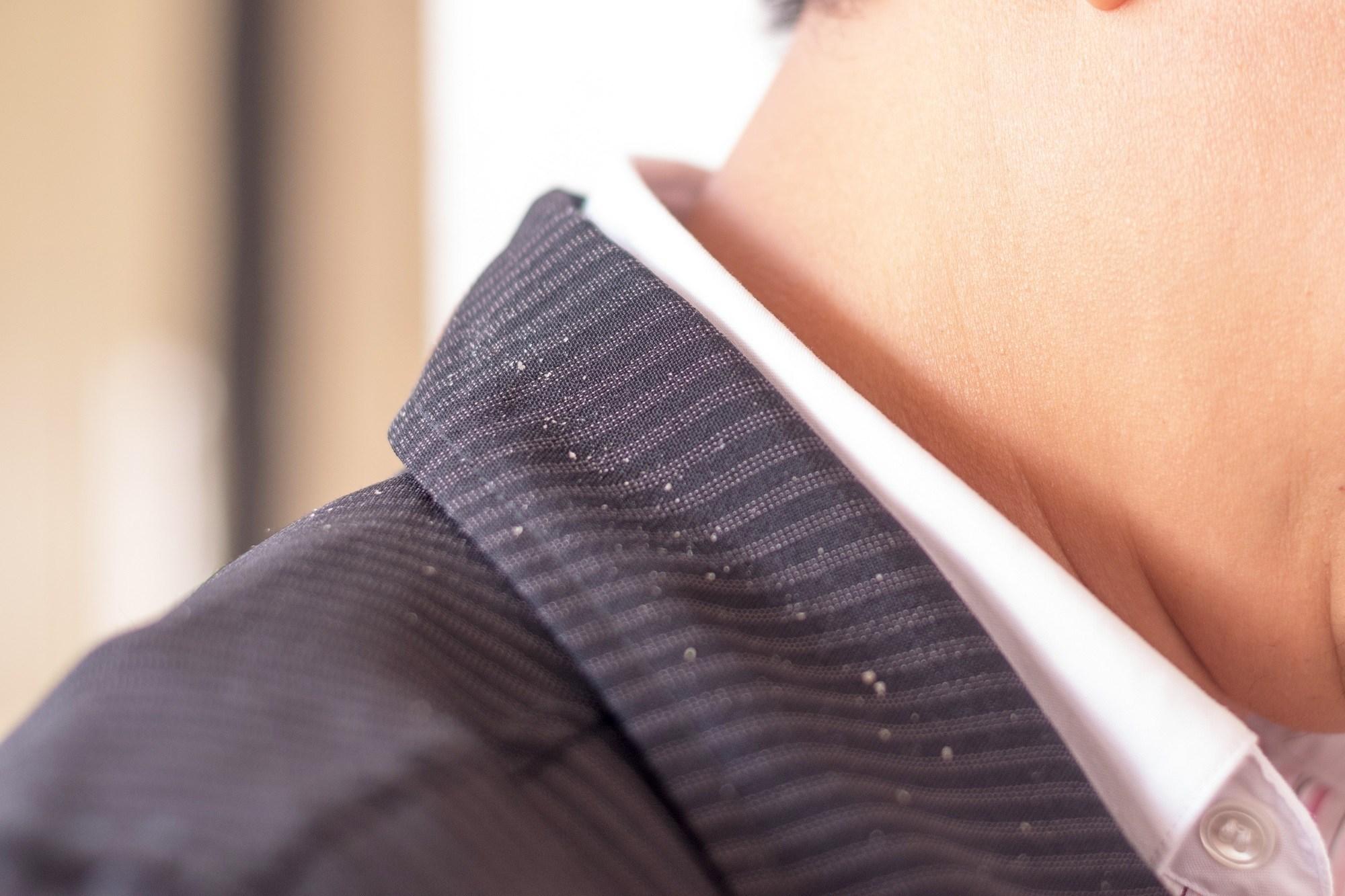 Scalp care for men: Check for white flaes